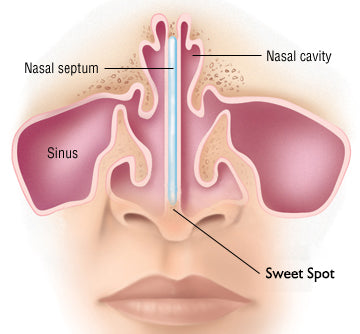nasal cartilage