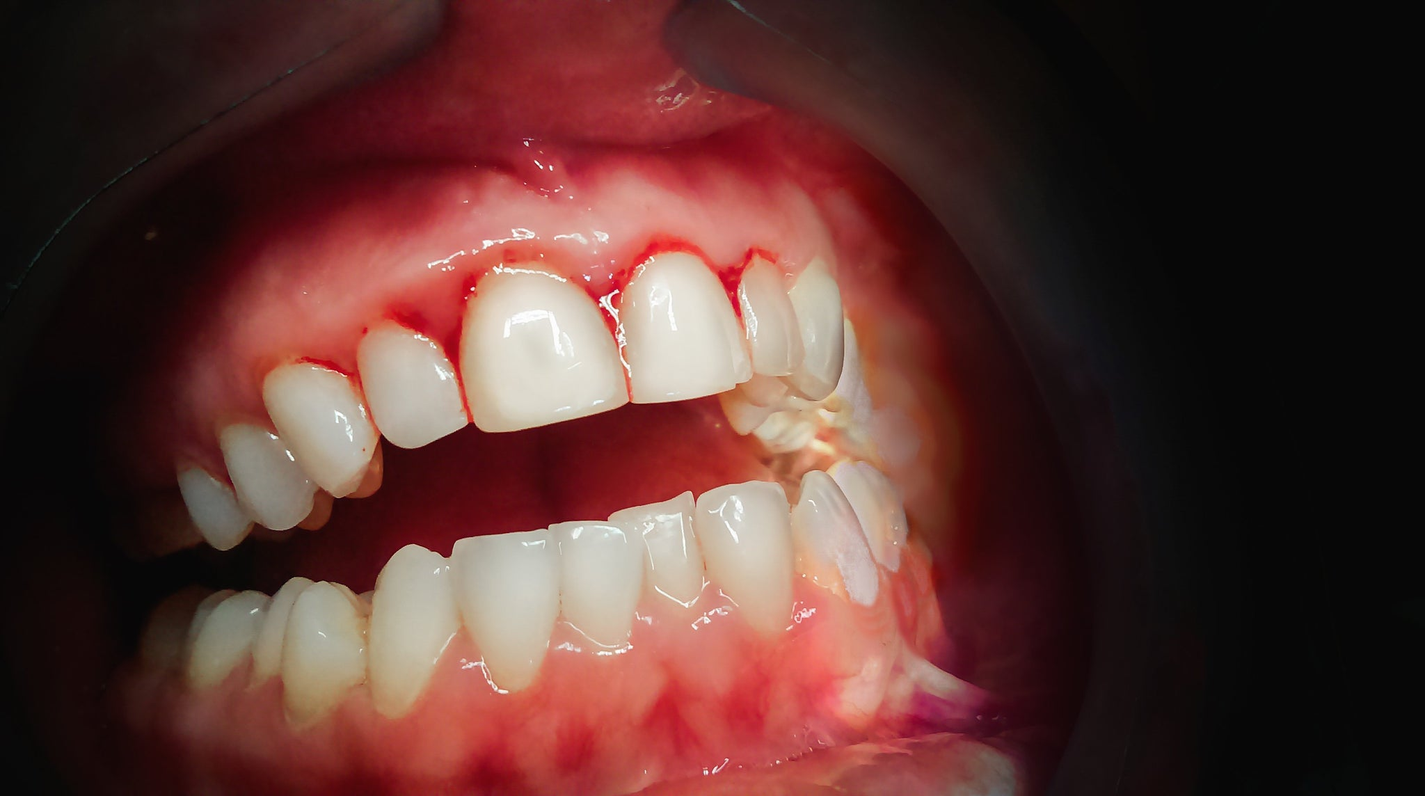 My gums bleed - Is this normal?