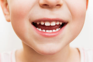 Help! My child's teeth are going black!