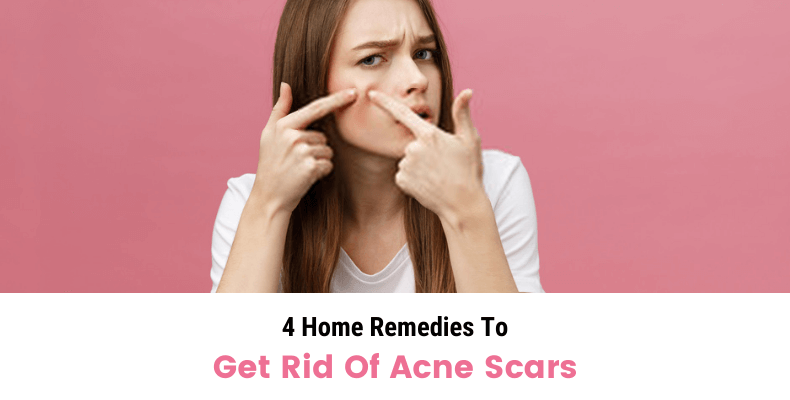 4 Home Remedies To Get Rid Of Acne Scars