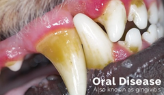 Oral Disease, Gingivitis