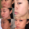 Load image into Gallery viewer, Award Winning Acne Clarifying Vitamin C Serum