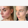 Load image into Gallery viewer, Ultimate Acne Clarifying Bundle