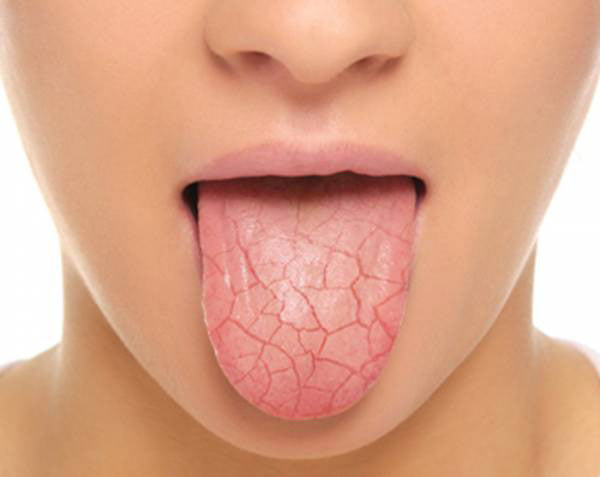 All About Dry Mouth | Dry Mouth Causes, Symptoms & Remedies