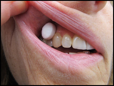 XyliMelts applied to the gums (gingiva)