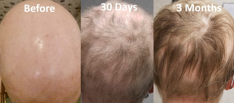 bald female before and after hair growth with hair n me hair vitamins