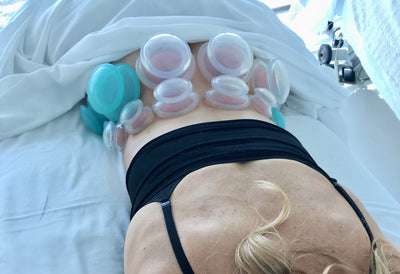 The ancient medicine of Cupping to reduce pain, inflammation and more