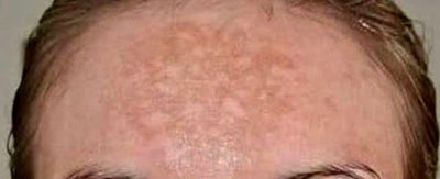 Cure therapies to treat melasma