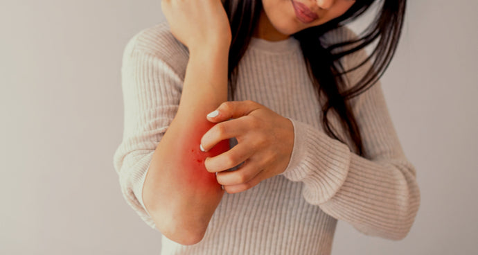 Eczema explained and our top tips to manage flare ups