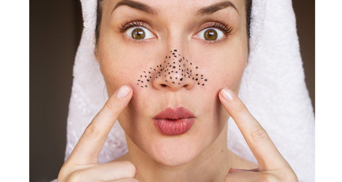 3 Steps to eliminate blackheads for good