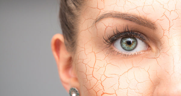 Signs of dehydrated skin and how to treat it