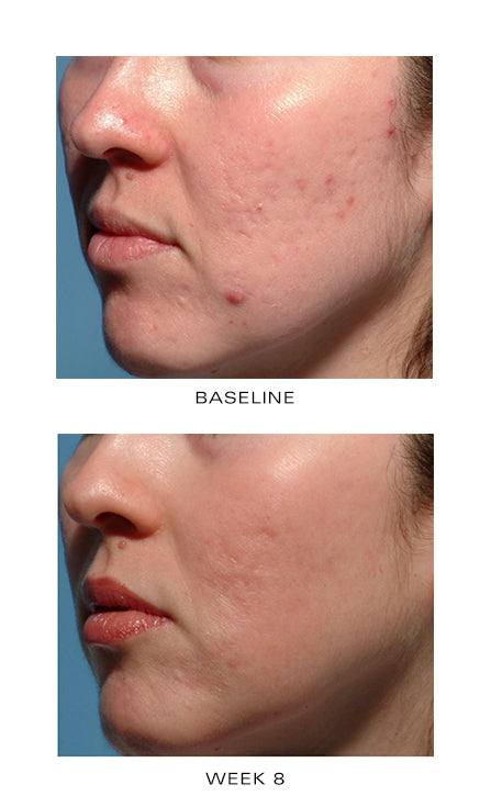 Before and after image after four weeks of acne control usage