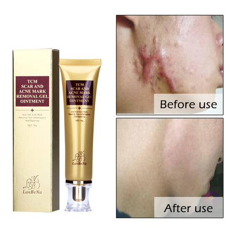 The Ultimate Scar Removal Cream heals, repairs and removes old and new scars such as surface and deep scars, burn, surgery and other skin damage. This cream provides outstanding skin regeneration and recovery. It solves multiple skin problems. Perfect to use for all skin types.