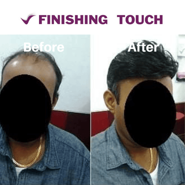 Advance Tape Mono Gents Hair Systems - Finishing Touch Sri Lanka