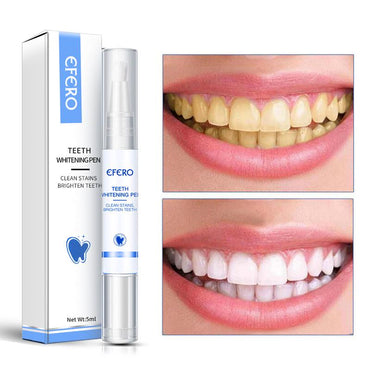 (Global Shop) Plaque Stains Serum Remove Dental Whitening Pen - My Life