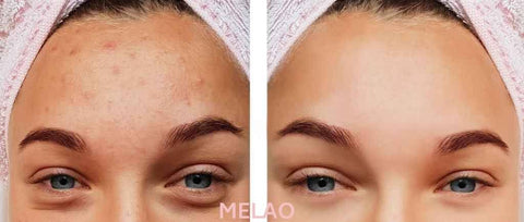 MELAO PINK CLAY MASK