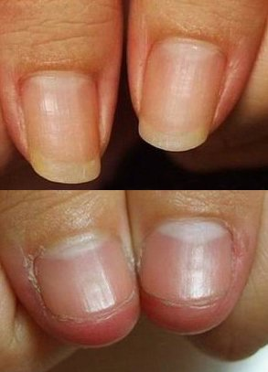 Perfanails Stop Nail-Biting Treatment For Kids, Have Healthy, Nice ...