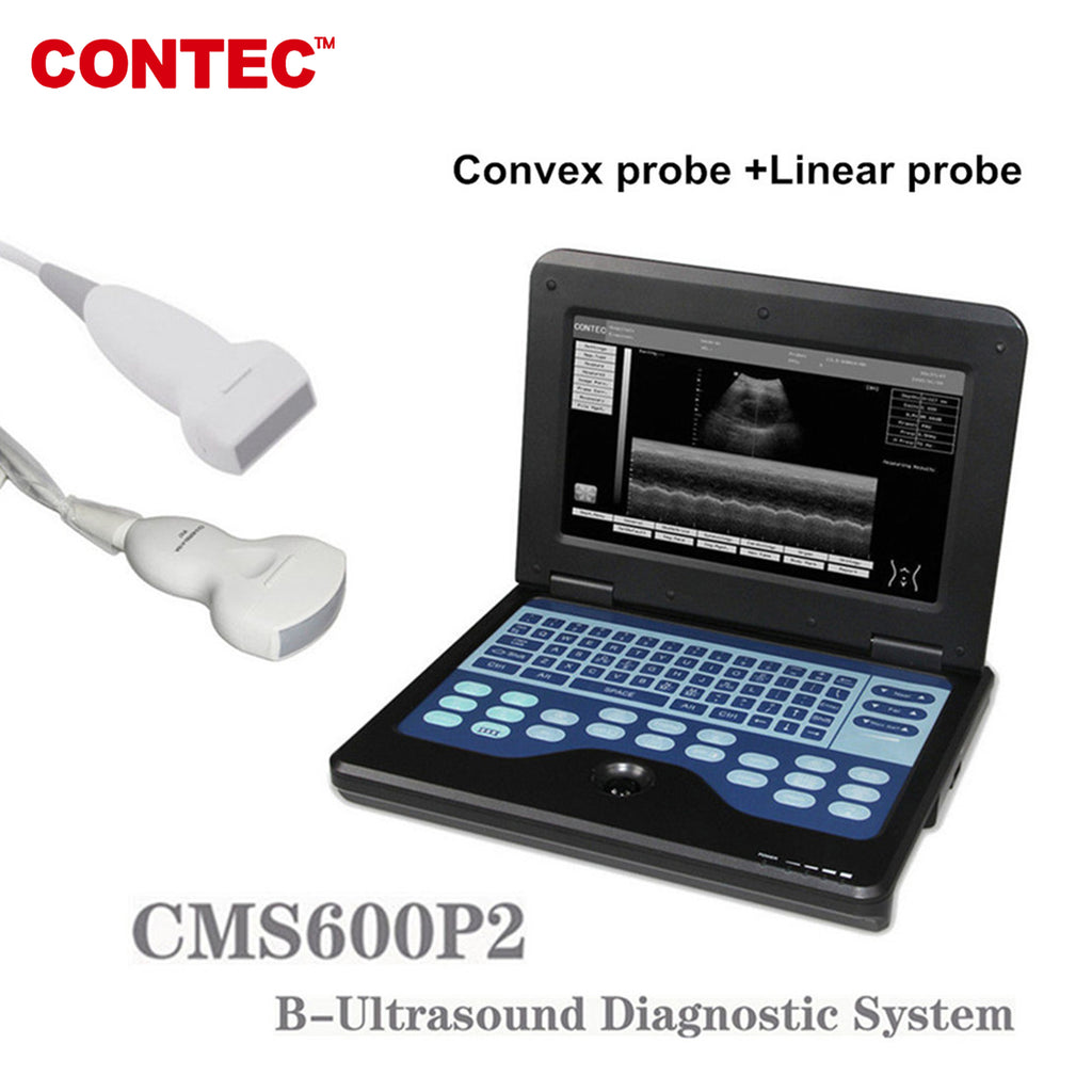 Portable Laptop Machine Digital Ultrasound Scanner,7.5M Linear+3.5M Convex Probe - contechealth