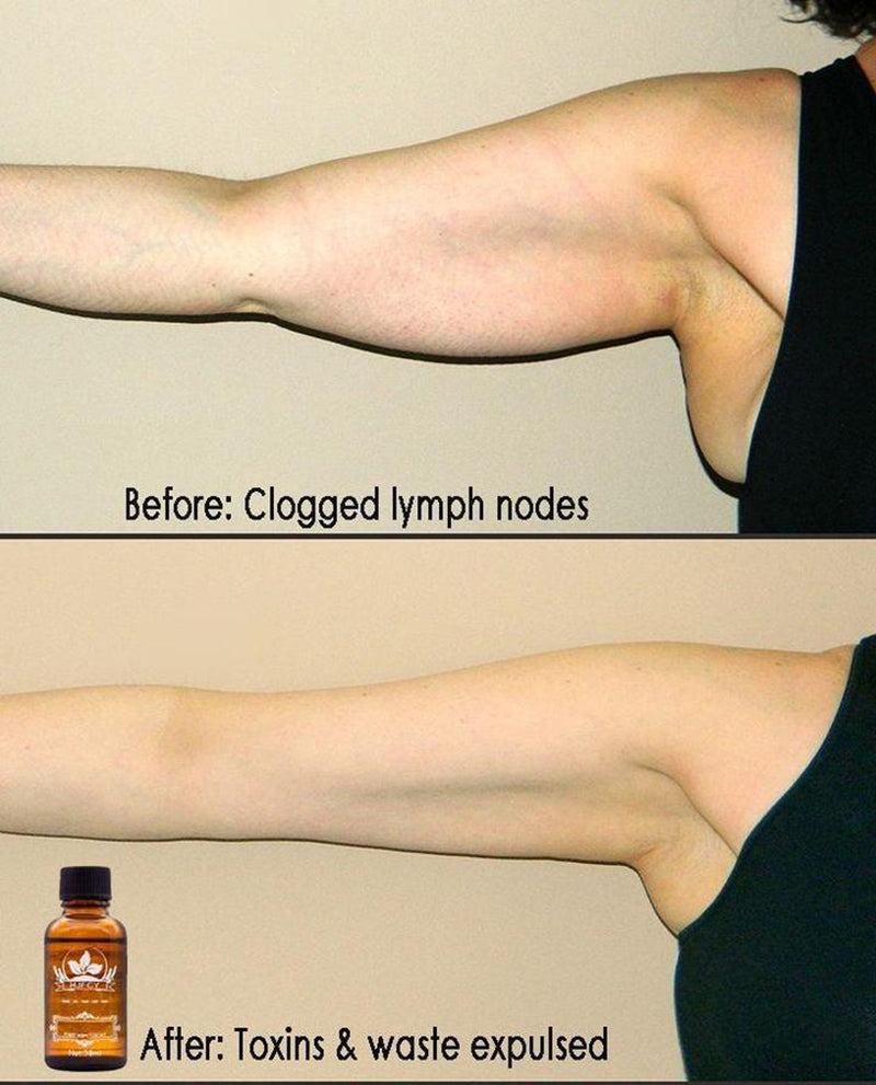 Lymphatic Drainage Ginger Oil
