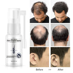 Hair Growth Spray For Men