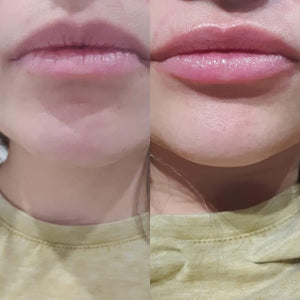 Xtreme Lip Plumping Serum - Juicy Lip Co