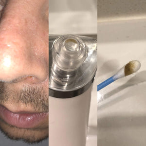 blackhead vacuum results