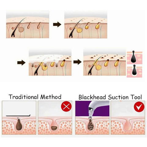 Image of blackhead suction tool
