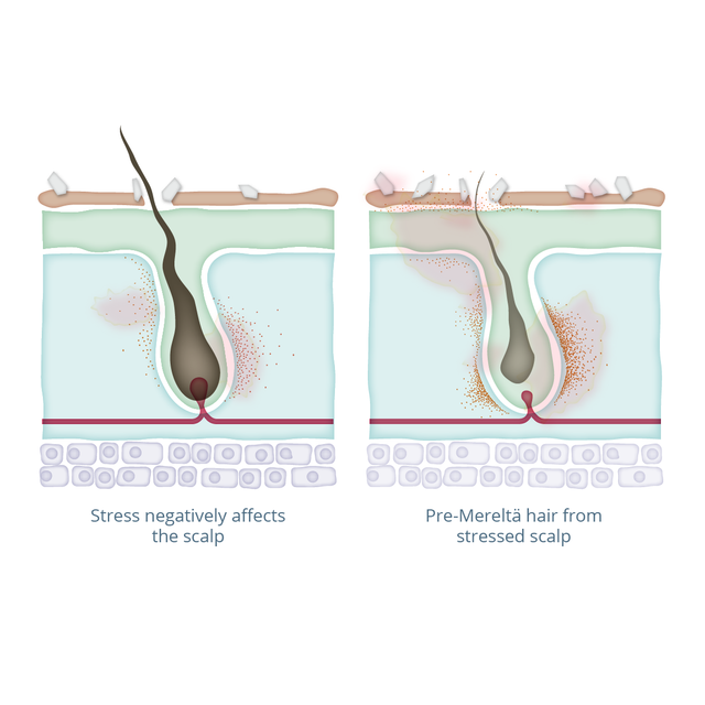 Merelta hair growth process and science