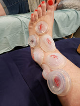 Live Online: Lower Body - Evidence Informed Clinical Cupping