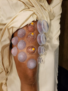 Live Online: Advanced: Cupping with Movement