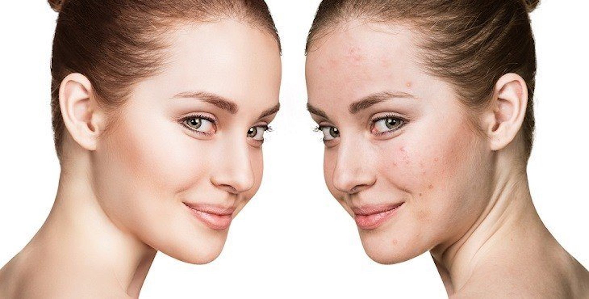 Acne-Prone Skin Care 8 Essential Products