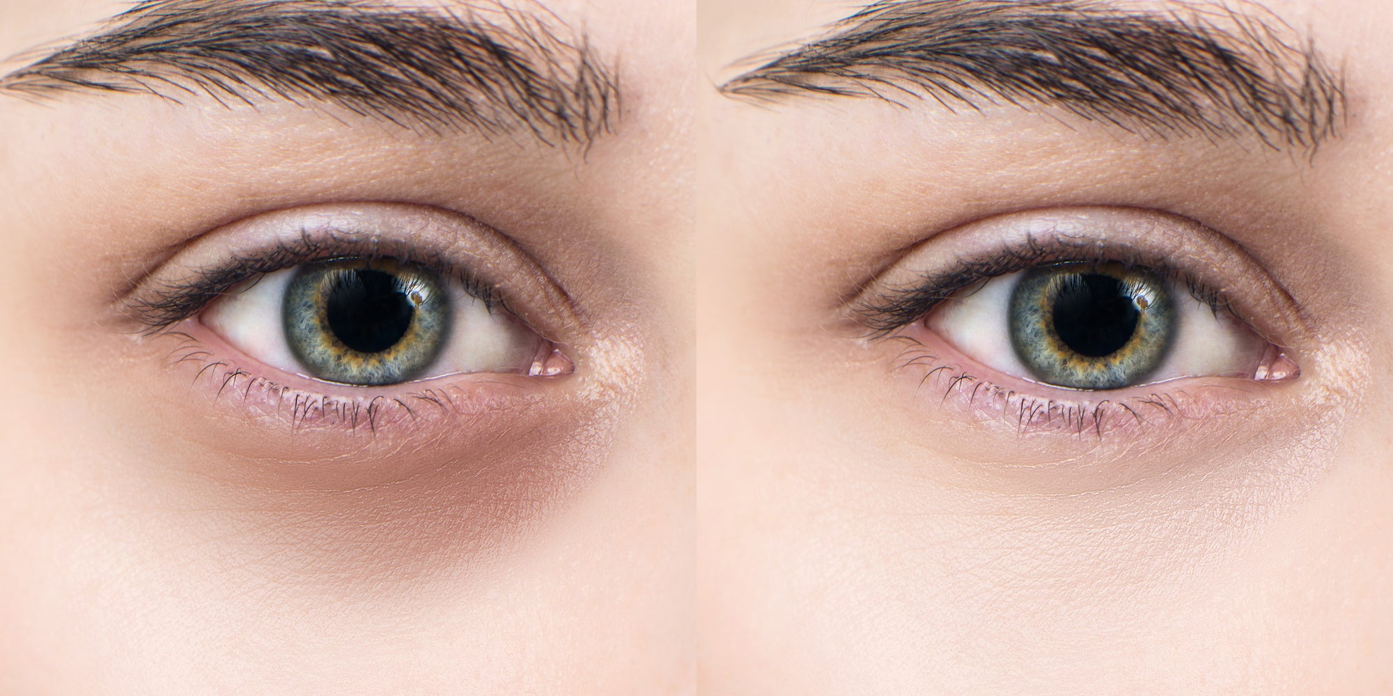 5 Reasons You Have Dark Under Eye Circles & How to Conceal Them