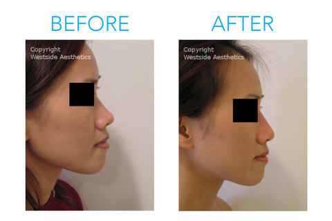 The Non-Surgical Nose Job