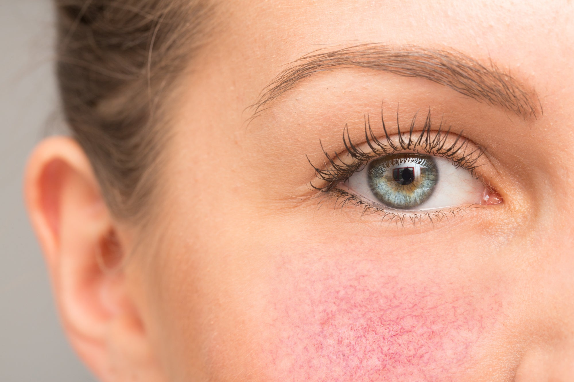 Rosacea: Symptoms, Causes, and Treatment