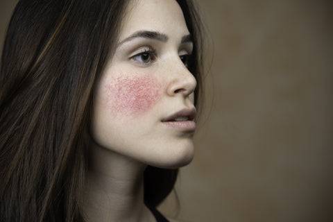 Rosacea Treatment Options From a Dermatologist