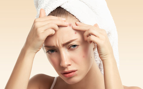 Are Your Haircare Products Causing Acne Breakouts?