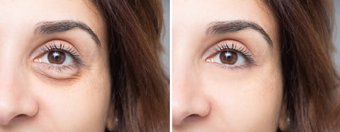 On Blepharoplasty with Oculoplastic Surgeon Dr. Maryam Zamani