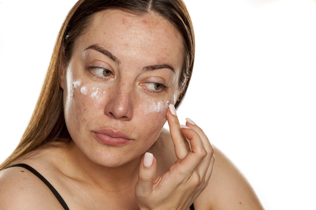 Melasma Topical Medication
