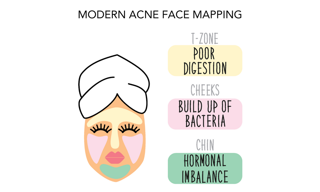 Modern Acne Face Mapping guide
