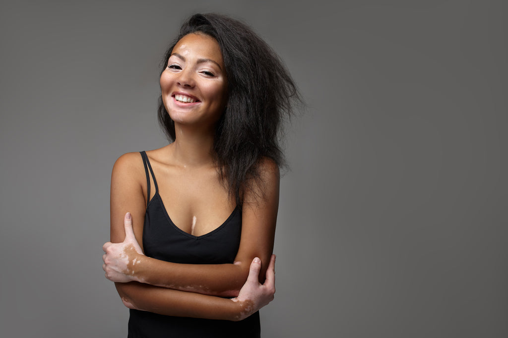 Vitiligo woman