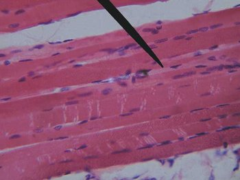 Striated Muscle - mammalian
