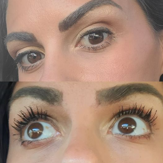 Before and After Lash Serum
