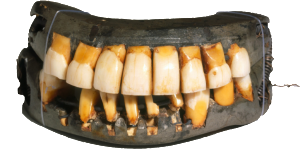 George Washington wore these uncomfortable dentures in his mouth for a solid chunk of his life.