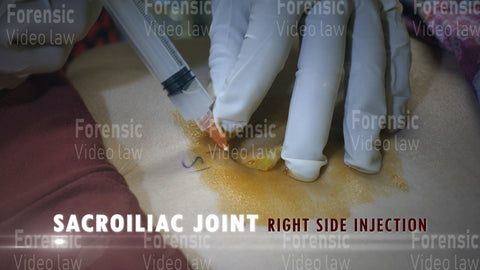 SI Joint Right Side