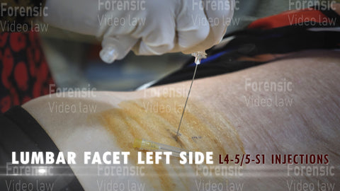 LUMBAR FACET L SIDE Video Still