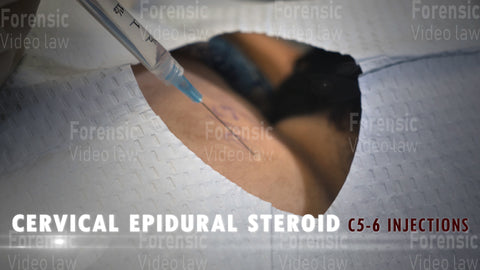 CERVICAL EPIDURAL STEROID  Video Still 00