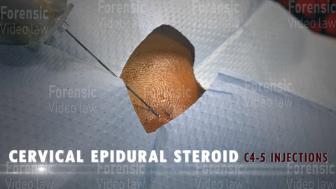 CERVICAL EPIDURAL STEROID Video Still