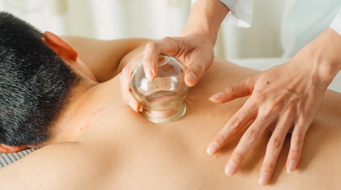 What's the deal with cupping?