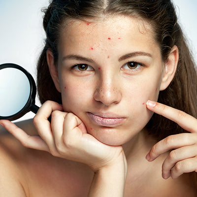 How To Deal With Skin Purging Using Ayurvedic Remedies?