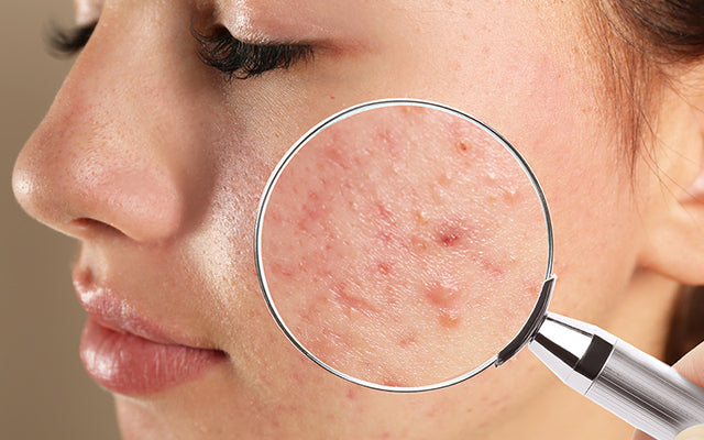 How To Treat Your Blind Pimples With Ayurveda? – Vedix
